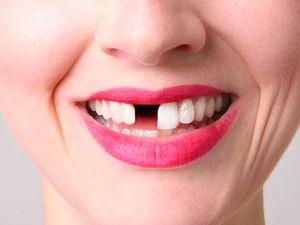 К чему снятся выпавшие передние зубы